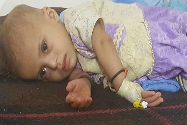 هر 11 دقیقه یک کودک یمنی می میرد